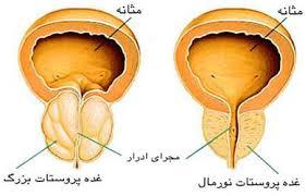 مراقبتهای بعد از جراحی برداشتن پروستات به روش TURP