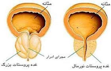 بیماری های مردان - آنچه مردان باید بدانند