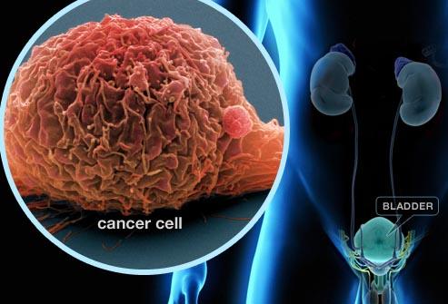 سرطان مثانه و دلایل آن