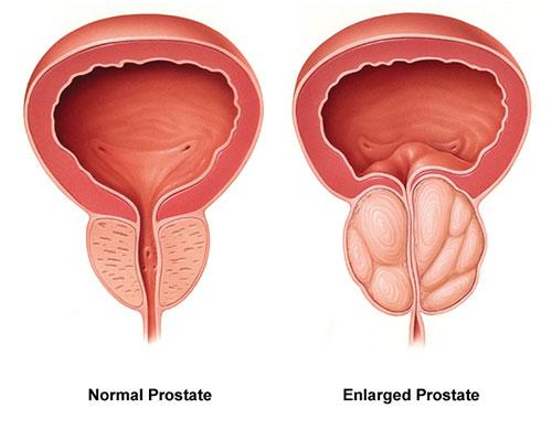 پروستات چیست ؟ علل ایجاد ، علائم و را های در مان بزرگی پروستات