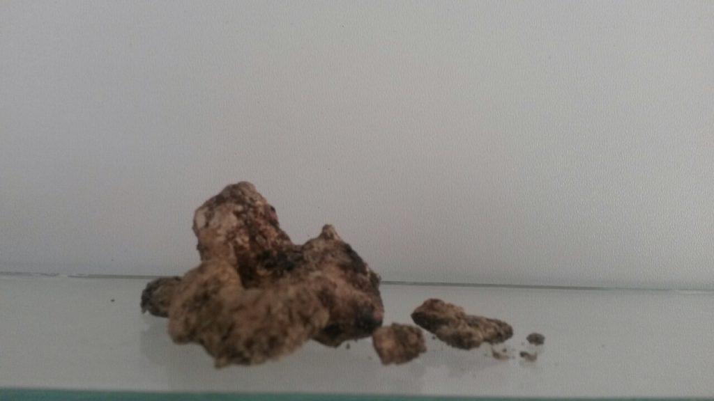 سنگ های ادراری - عوامل تشکیل ، بررسی و تشخیص ، درمان