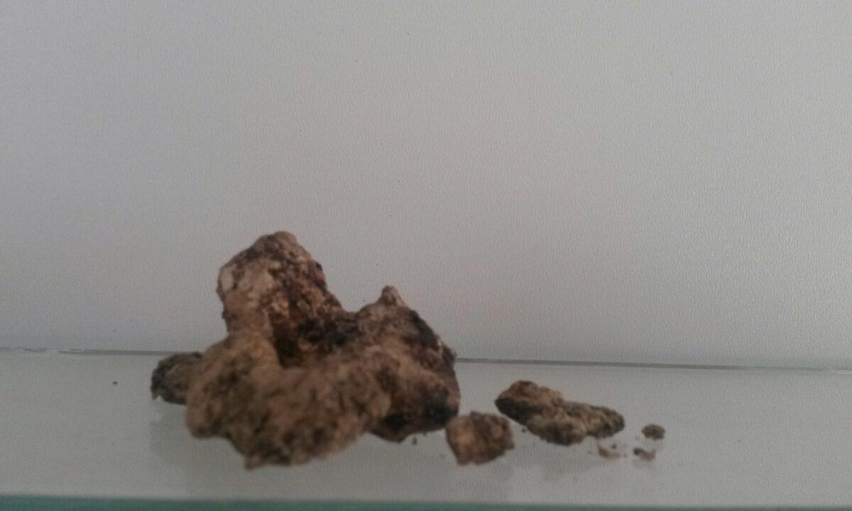 سنگ های کلیه و ادراری – عوامل تشکیل ، بررسی و تشخیص ، درمان