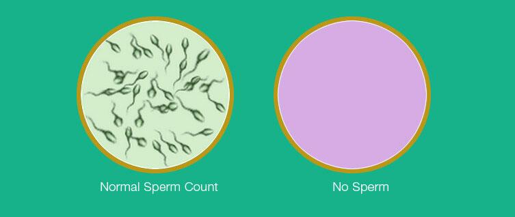 Azoospermia : آزو اسپرمی فقدان اسپرم