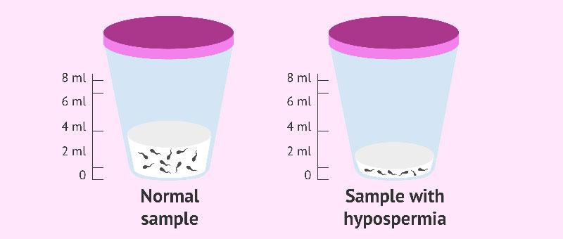 Hypospermia : هیپو اسپرمیا کاهش مایع منی