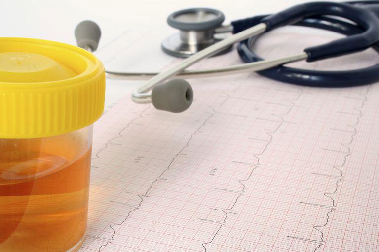 هماچوری یا وجود خون در ادرار ، علل ، تشخیص و درمان آن چیست ؟