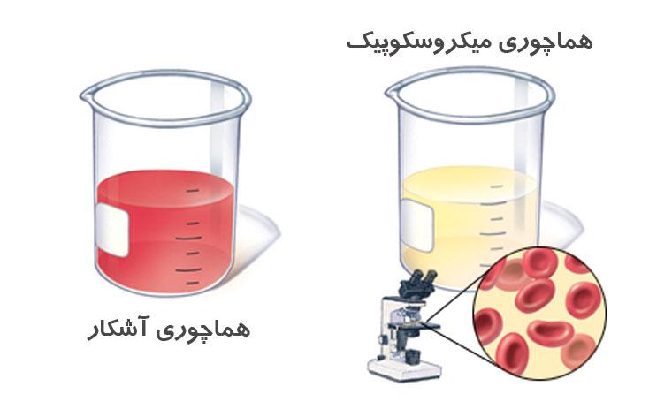 هماچوری آشکار و هماچوری میکروسکوپیک