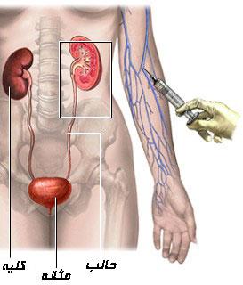 پیلوگرافی داخل وریدی (IVP)