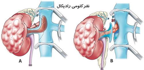 نفروکتومی رادیکال (کامل)
