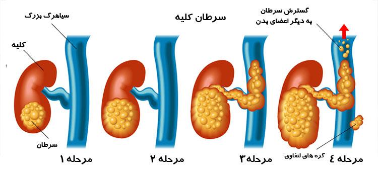 مراحل سرطان کلیه