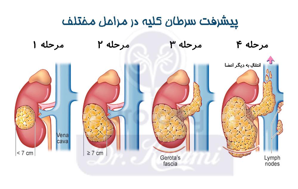 پیشرفت سرطان کلیه
