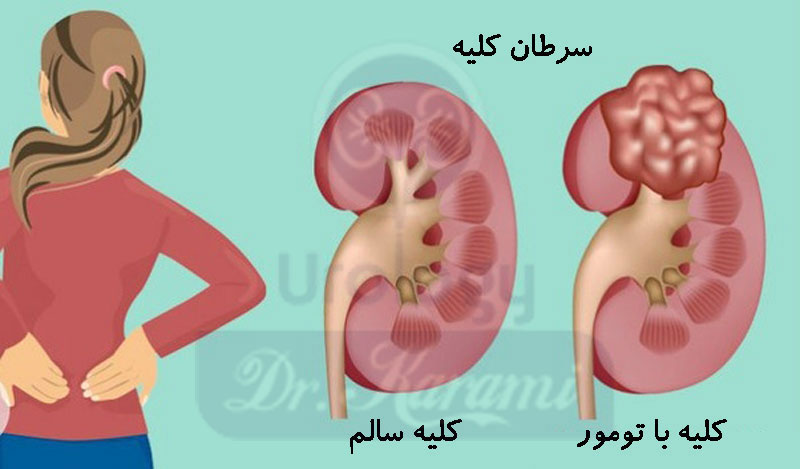 سرطان کلیه - تومور کلیه