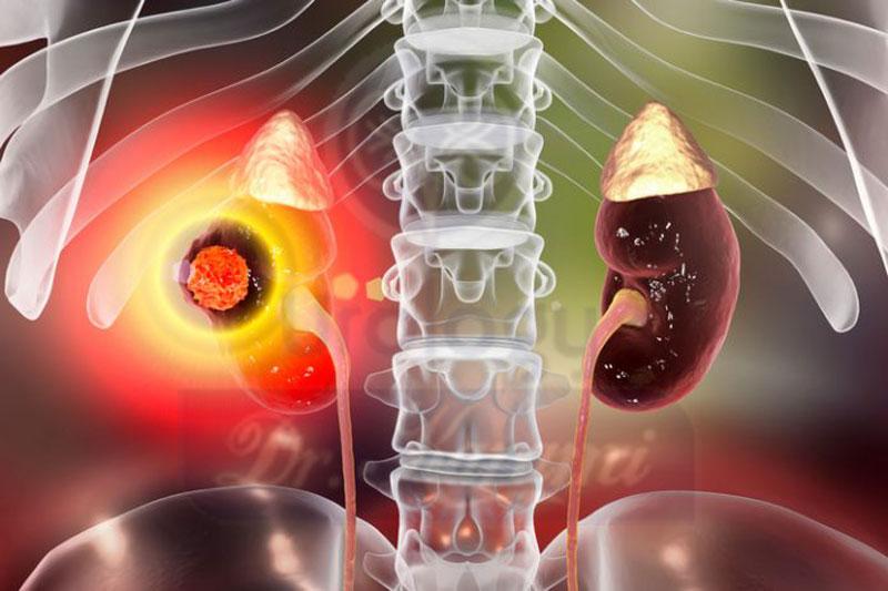 تشخیص سرطان کلیه و مرحله بندی آن