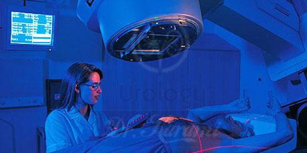 پرتو درمانی سرطان کلیه