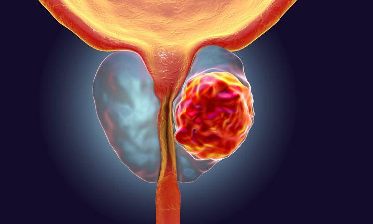 تستوسترون بالا خطر ابتلا به سرطان پروستات را افزایش میدهد