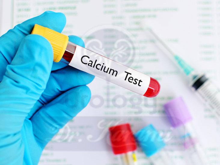 آزمایش خون کلسیم چیست؟