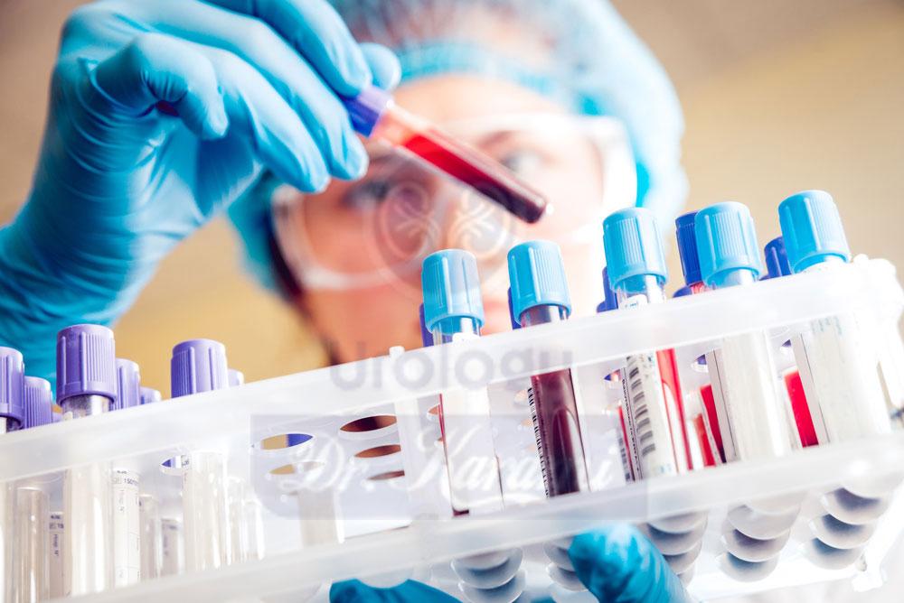 سایر آزمایش های همراه آزمایش خون کلسیم