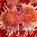 سرطانهای شایع در مردان ایرانی کدامند؟
