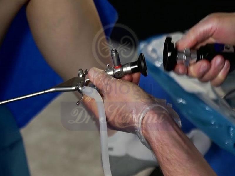 هیستروسالپلنگوگرافی (HSG) یاعکس رنگی از رحم - تشخیص لوله فالوپ مسدود شده